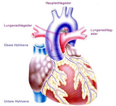 EMAH: Transposition der grossen Arterien::