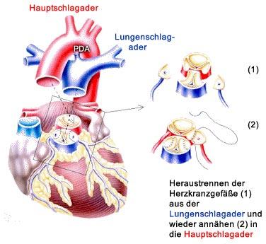 verbindung lunge herz